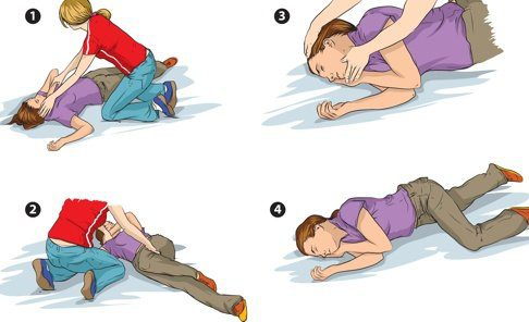demonstrating getting someone into the recovery position